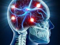 ob_30e242_131206-no3i9-cerveau-neurone-represent